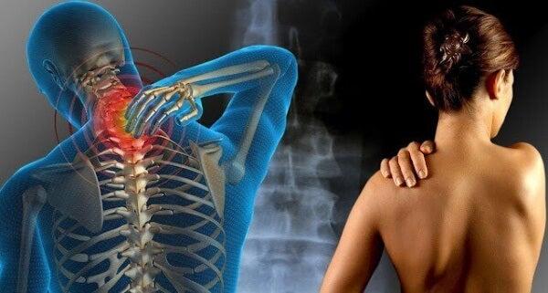 Smärta från fibromyalgi