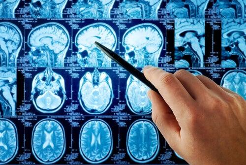 Röntgen av hjärnan