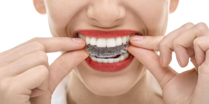 Kvinna med tandskydd