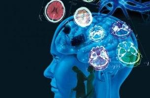 Fakta om multipel skleros