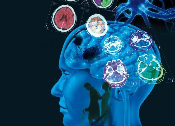 Multipel skleros: orsaker, symptom och behandling