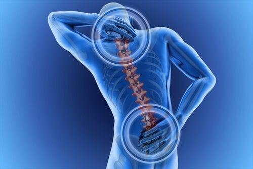 Smärta i ryggraden