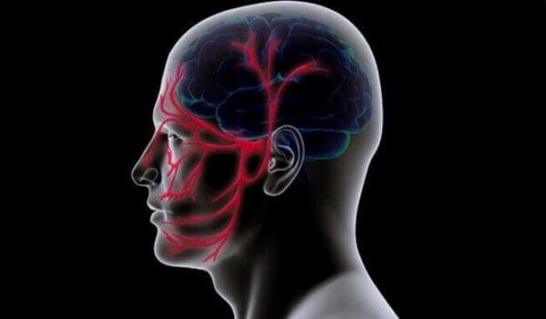 Huvud med illustrerad trigeminusneuralgi