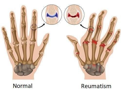 Hand med reumatism