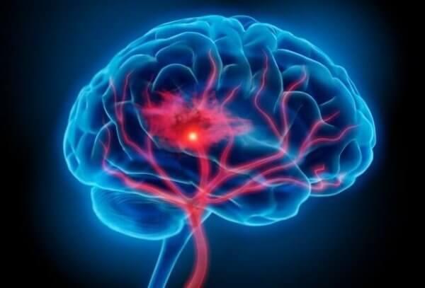 neuroinflammation som orsak för depression