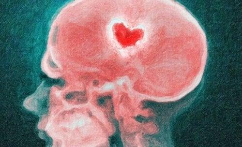 Din hjärna under ett uppbrott: om kärlek och smärta