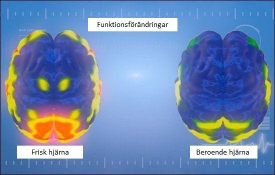 Beroende hjärna