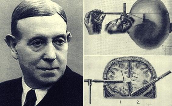 Egas Moniz och lobotomins fantastiska historia