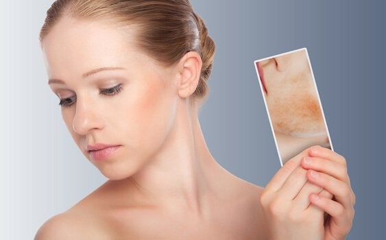 spegelexponerings terapi