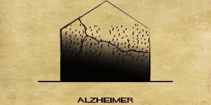 Representation av Alzheimers.