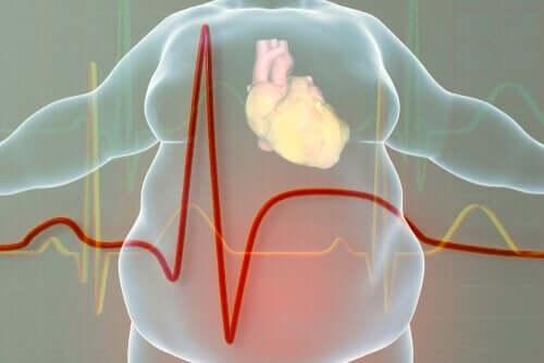 Hjärthälsa och fetma