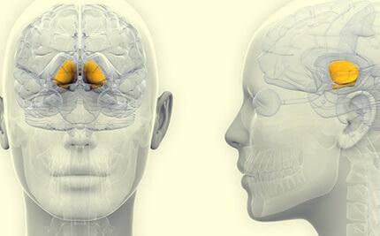 Hjärna med progressiv supranukleär pares