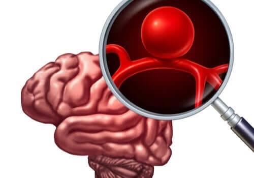 Förstoringsglas och hjärna.