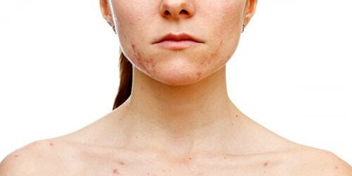 Kvinna med hudfläckar.