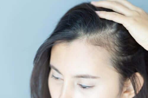 De psykologiska effekterna av alopeci hos kvinnor