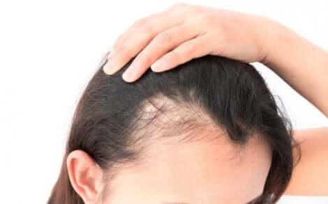 Kvinna med håravfall