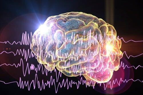 Vid epilepsi registrerar man onormal hjärnaktivitet