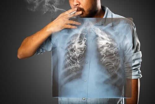Rökning ökar risken för KOL