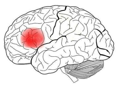 Hjärnan med Brocas område markerat med rött