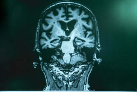 Vid Alzheimers anhopas amyloid i hjärnan