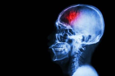 Stroke är en av de vanligaste dödsorsakerna runt om i världen