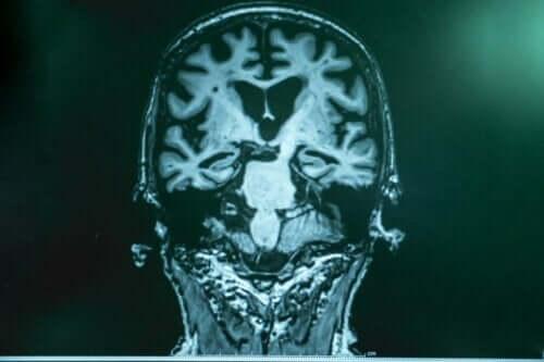 En röntgenbild av en hjärna