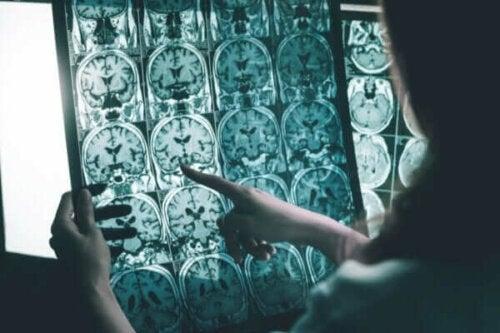 Hjärnstimulering för personer med Alzheimers sjukdom