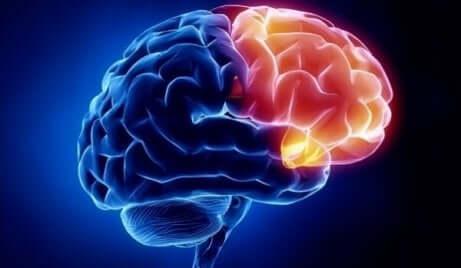 Ett foto av en hjärna som visar dess skuldområde i rött