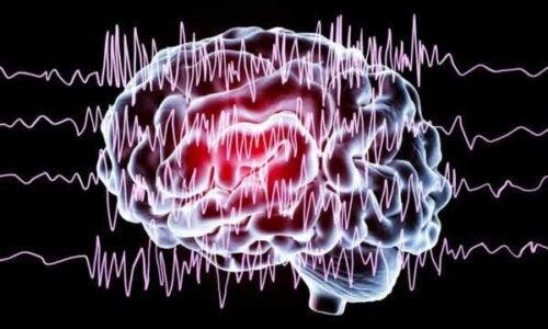 En illustration av hjärnvågor
